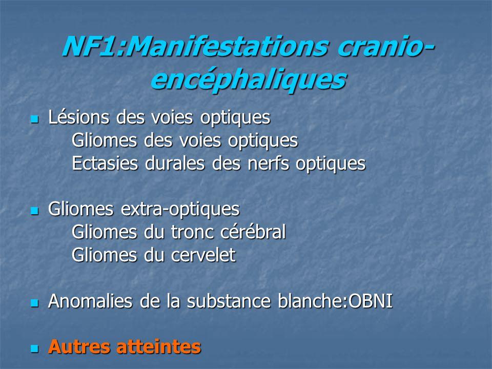 NF1:Manifestations cranio- encéphaliques Lésions des voies optiques Lésions des voies optiques Gliomes des voies optiques Gliomes des voies optiques E