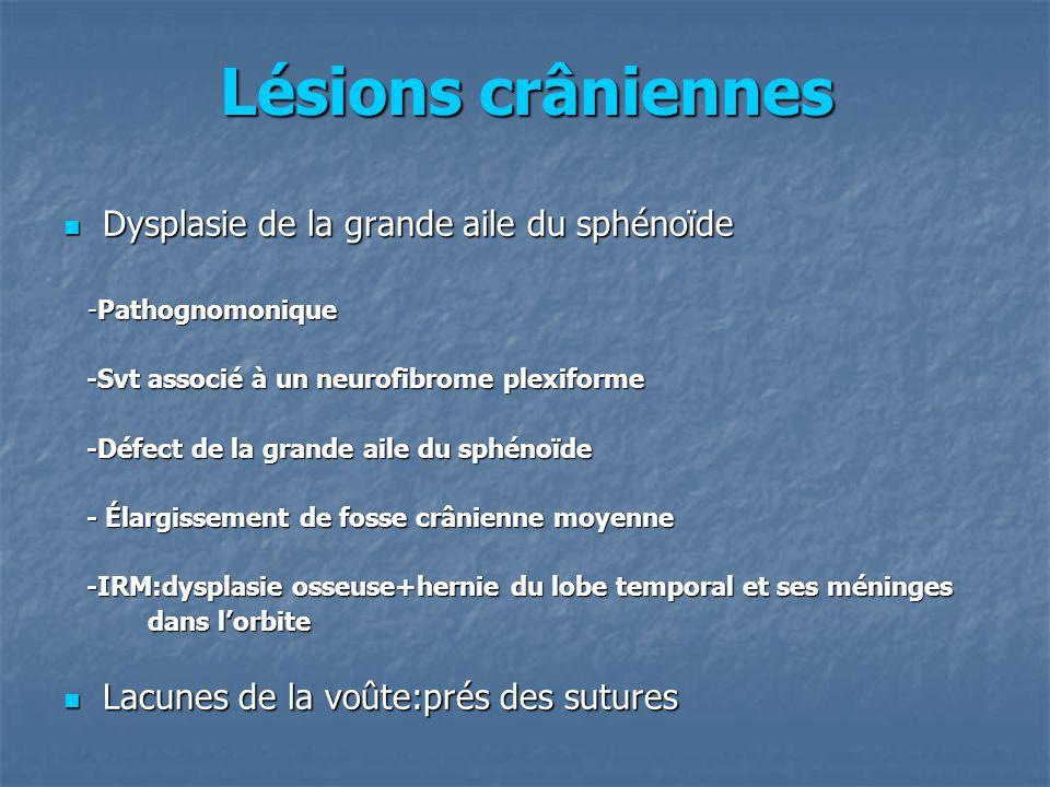Lésions crâniennes Dysplasie de la grande aile du sphénoïde Dysplasie de la grande aile du sphénoïde -Pathognomonique -Pathognomonique -Svt associé à