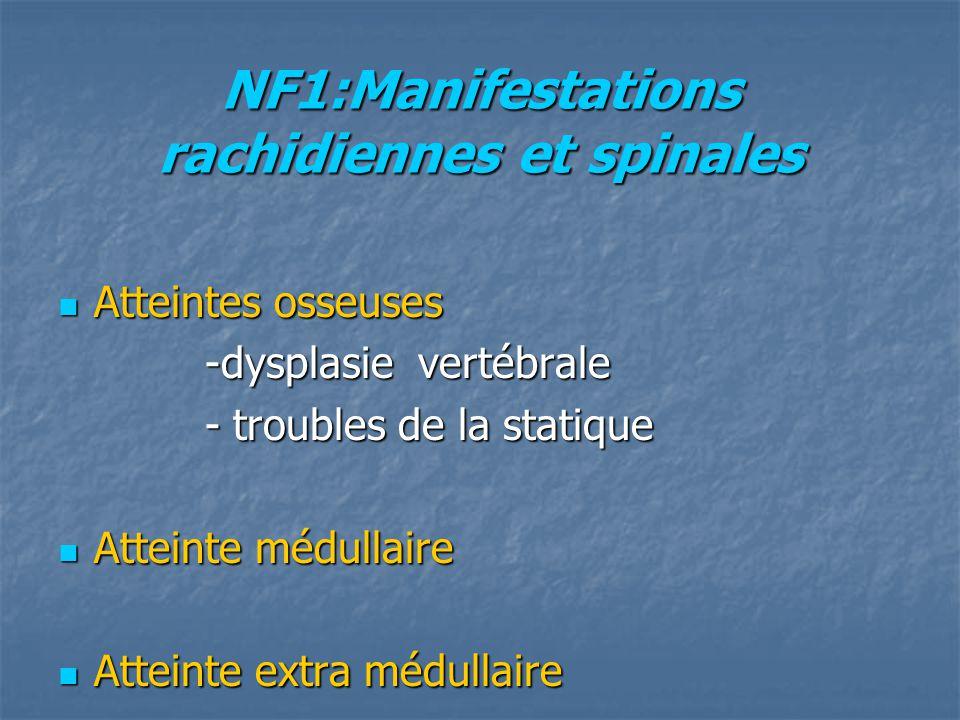 NF1:Manifestations rachidiennes et spinales Atteintes osseuses Atteintes osseuses -dysplasie vertébrale -dysplasie vertébrale - troubles de la statiqu