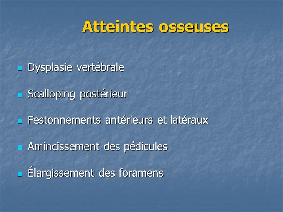 Atteintes osseuses Atteintes osseuses Dysplasie vertébrale Dysplasie vertébrale Scalloping postérieur Scalloping postérieur Festonnements antérieurs e