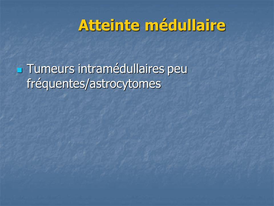 Atteinte médullaire Atteinte médullaire Tumeurs intramédullaires peu fréquentes/astrocytomes Tumeurs intramédullaires peu fréquentes/astrocytomes