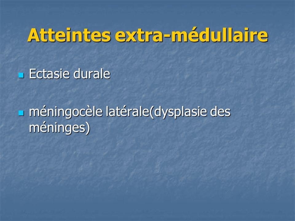 Atteintes extra-médullaire Ectasie durale Ectasie durale méningocèle latérale(dysplasie des méninges) méningocèle latérale(dysplasie des méninges)