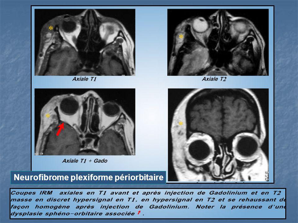 Neurofibrome plexiforme périorbitaire