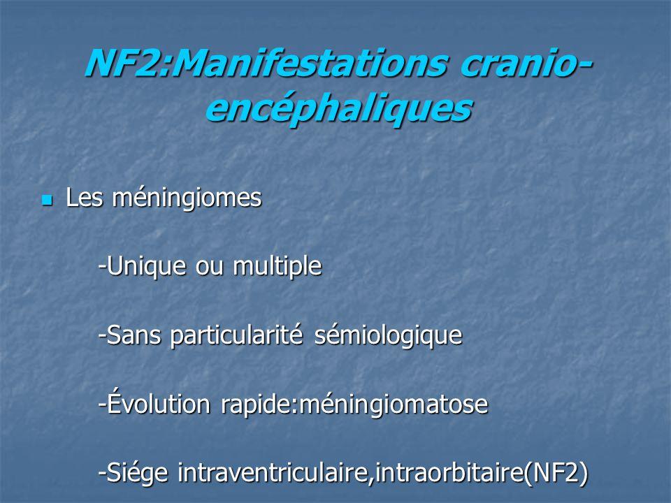 NF2:Manifestations cranio- encéphaliques Les méningiomes Les méningiomes -Unique ou multiple -Unique ou multiple -Sans particularité sémiologique -Sans particularité sémiologique -Évolution rapide:méningiomatose -Évolution rapide:méningiomatose -Siége intraventriculaire,intraorbitaire(NF2) -Siége intraventriculaire,intraorbitaire(NF2)