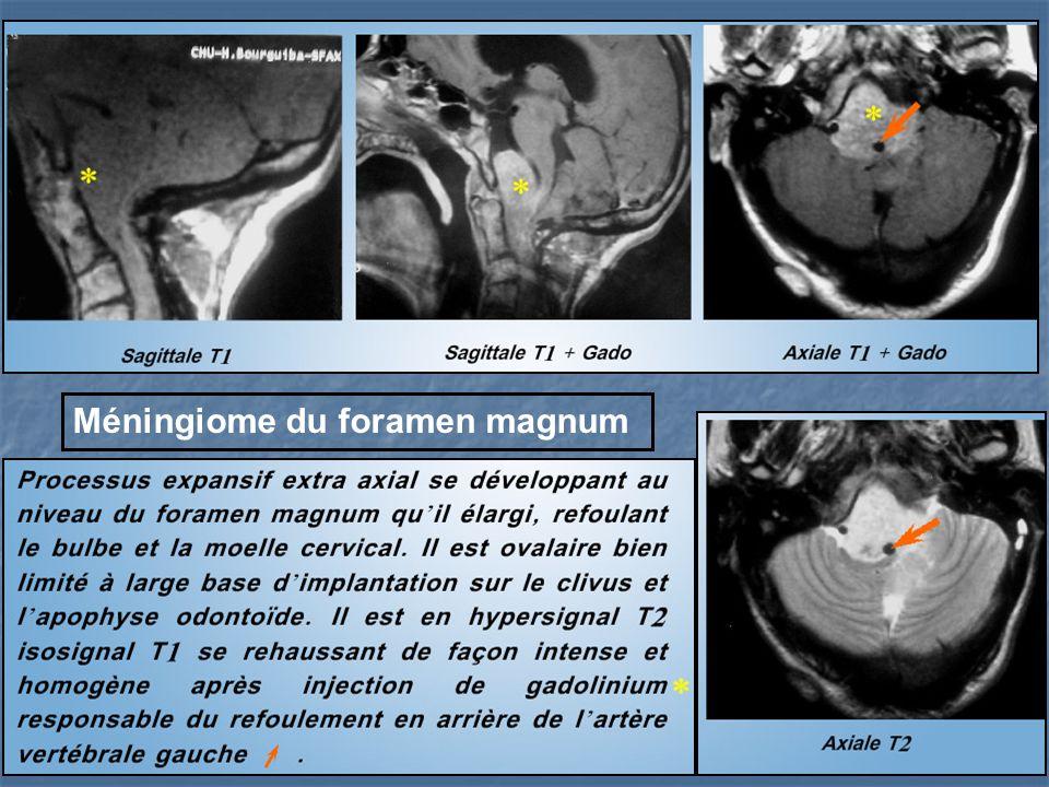 Méningiome du foramen magnum