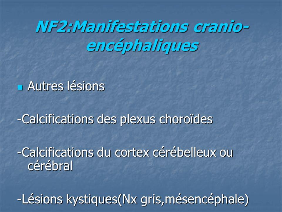 NF2:Manifestations cranio- encéphaliques Autres lésions Autres lésions -Calcifications des plexus choroïdes -Calcifications du cortex cérébelleux ou cérébral -Lésions kystiques(Nx gris,mésencéphale)