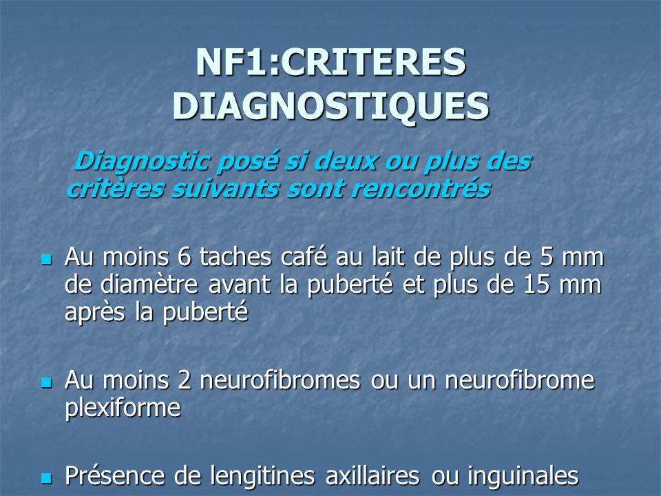 NF1:CRITERES DIAGNOSTIQUES Diagnostic posé si deux ou plus des critères suivants sont rencontrés Diagnostic posé si deux ou plus des critères suivants sont rencontrés Au moins 6 taches café au lait de plus de 5 mm de diamètre avant la puberté et plus de 15 mm après la puberté Au moins 6 taches café au lait de plus de 5 mm de diamètre avant la puberté et plus de 15 mm après la puberté Au moins 2 neurofibromes ou un neurofibrome plexiforme Au moins 2 neurofibromes ou un neurofibrome plexiforme Présence de lengitines axillaires ou inguinales Présence de lengitines axillaires ou inguinales