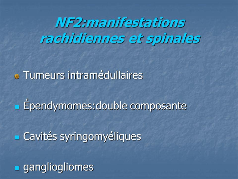 NF2:manifestations rachidiennes et spinales Tumeurs intramédullaires Épendymomes:double composante Épendymomes:double composante Cavités syringomyéliques Cavités syringomyéliques gangliogliomes gangliogliomes