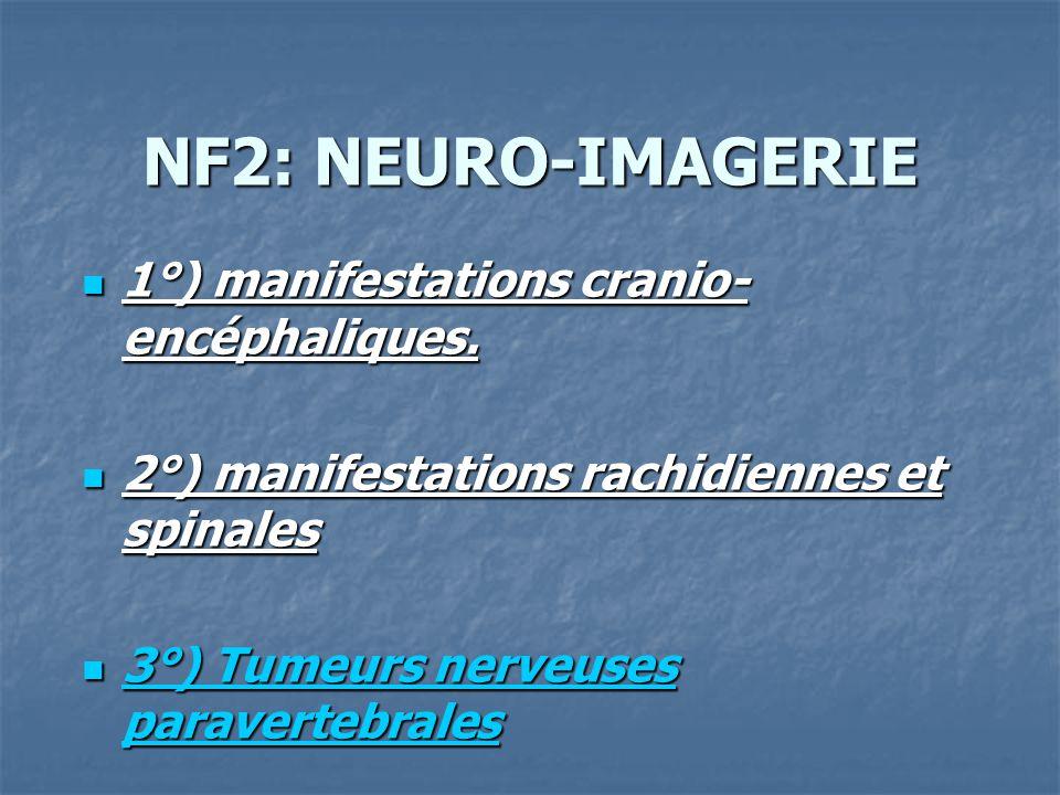 NF2: NEURO-IMAGERIE 1°) manifestations cranio- encéphaliques. 1°) manifestations cranio- encéphaliques. 2°) manifestations rachidiennes et spinales 2°