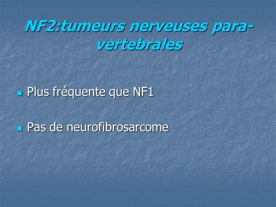 NF2:tumeurs nerveuses para- vertebrales Plus fréquente que NF1 Plus fréquente que NF1 Pas de neurofibrosarcome Pas de neurofibrosarcome