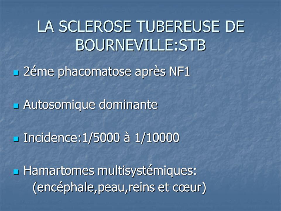 2éme phacomatose après NF1 2éme phacomatose après NF1 Autosomique dominante Autosomique dominante Incidence:1/5000 à 1/10000 Incidence:1/5000 à 1/1000