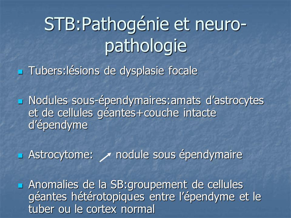 STB:Pathogénie et neuro- pathologie Tubers:lésions de dysplasie focale Tubers:lésions de dysplasie focale Nodules sous-épendymaires:amats dastrocytes et de cellules géantes+couche intacte dépendyme Nodules sous-épendymaires:amats dastrocytes et de cellules géantes+couche intacte dépendyme Astrocytome: nodule sous épendymaire Astrocytome: nodule sous épendymaire Anomalies de la SB:groupement de cellules géantes hétérotopiques entre lépendyme et le tuber ou le cortex normal Anomalies de la SB:groupement de cellules géantes hétérotopiques entre lépendyme et le tuber ou le cortex normal