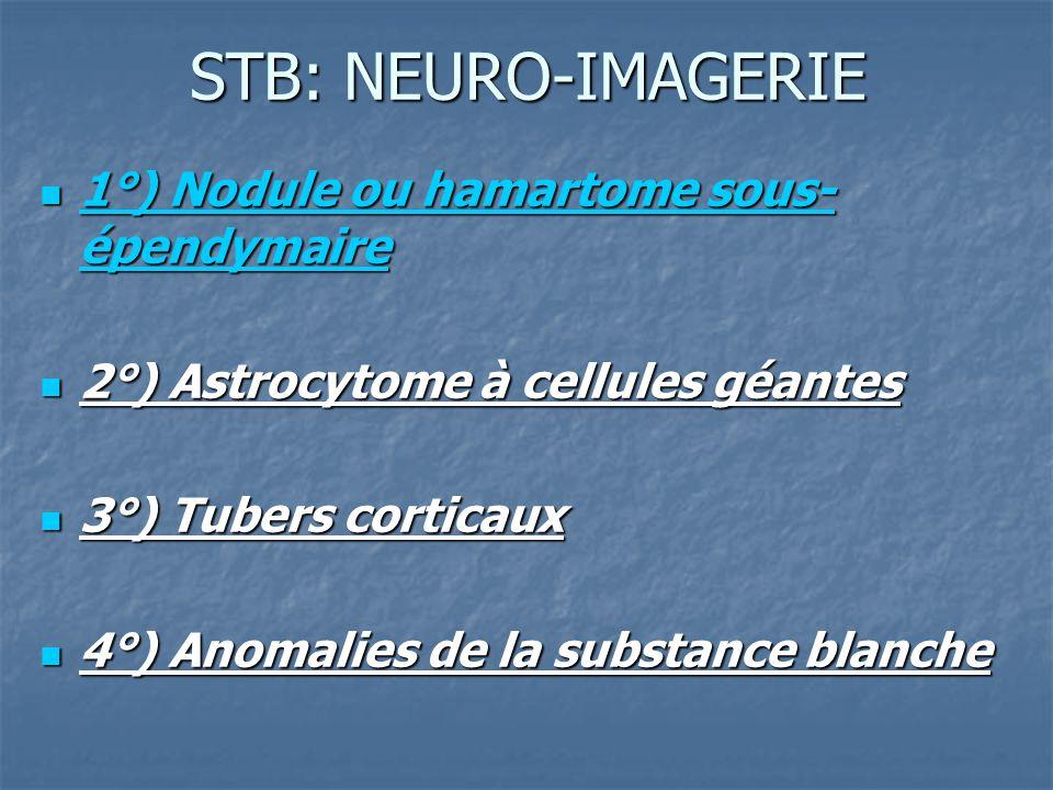 STB: NEURO-IMAGERIE 1°) Nodule ou hamartome sous- épendymaire 1°) Nodule ou hamartome sous- épendymaire 2°) Astrocytome à cellules géantes 2°) Astrocy
