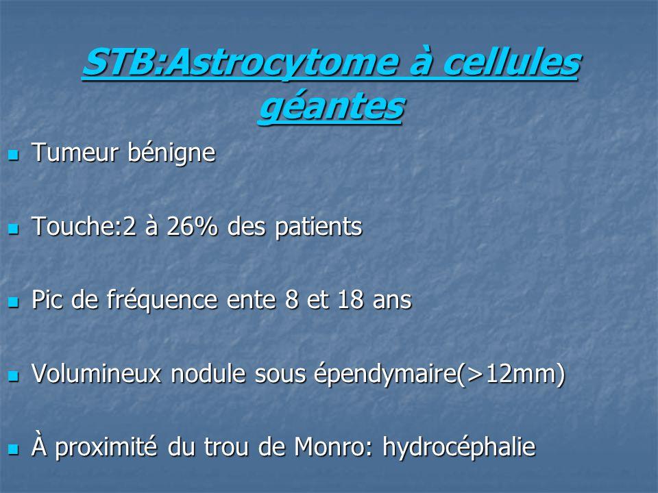 STB:Astrocytome à cellules géantes Tumeur bénigne Tumeur bénigne Touche:2 à 26% des patients Touche:2 à 26% des patients Pic de fréquence ente 8 et 18 ans Pic de fréquence ente 8 et 18 ans Volumineux nodule sous épendymaire(>12mm) Volumineux nodule sous épendymaire(>12mm) À proximité du trou de Monro: hydrocéphalie À proximité du trou de Monro: hydrocéphalie