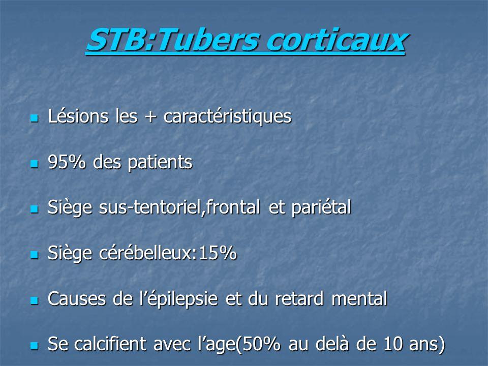 STB:Tubers corticaux Lésions les + caractéristiques Lésions les + caractéristiques 95% des patients 95% des patients Siège sus-tentoriel,frontal et pariétal Siège sus-tentoriel,frontal et pariétal Siège cérébelleux:15% Siège cérébelleux:15% Causes de lépilepsie et du retard mental Causes de lépilepsie et du retard mental Se calcifient avec lage(50% au delà de 10 ans) Se calcifient avec lage(50% au delà de 10 ans)