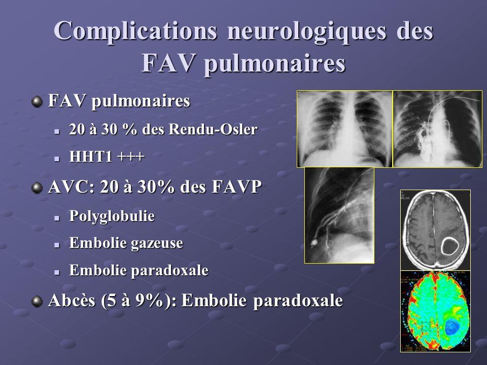 Lésions vasculaires cérébrales Tous types: télangiectasies, cavernomes, fistules AV (enfant+++), malformations artério-veineuses… Fréquence Diversement appréciée Diversement appréciée Maher: 321 patients symptomatiques, 12 MAV (3.7%) Fulbright: 184 patients, malformations vasculaires (22.8%), MAV (4.9%) en IRM Willemse: 196 patients, MAV (12.2%) en angiographie Au total:- lésions vasculaires cérébrales: environ 20% - Malformations Artèrio-Veineuses: environ 10% Au total:- lésions vasculaires cérébrales: environ 20% - Malformations Artèrio-Veineuses: environ 10%