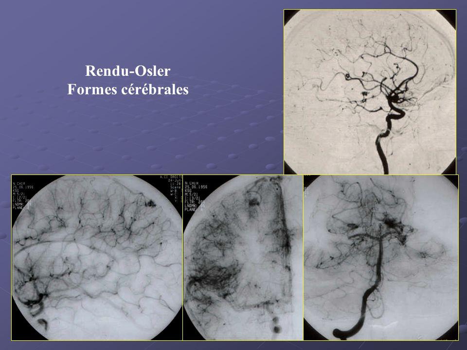 Rendu-Osler Formes cérébrales