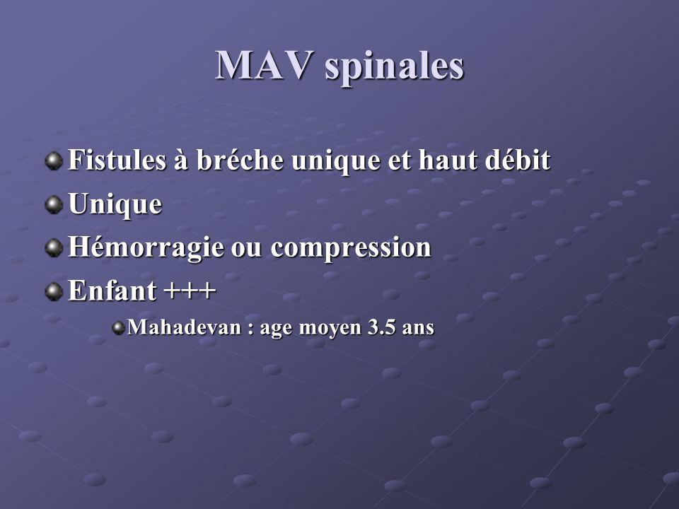 MAV spinales Fistules à bréche unique et haut débit Unique Hémorragie ou compression Enfant +++ Mahadevan : age moyen 3.5 ans