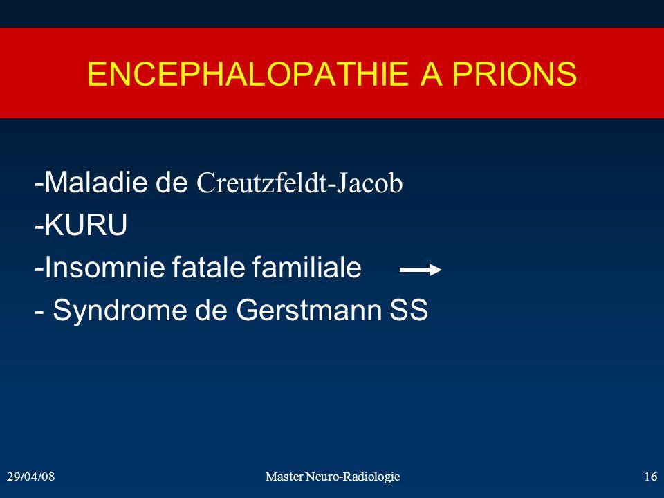 29/04/08Master Neuro-Radiologie16 ENCEPHALOPATHIE A PRIONS -Maladie de Creutzfeldt-Jacob -KURU -Insomnie fatale familiale - Syndrome de Gerstmann SS