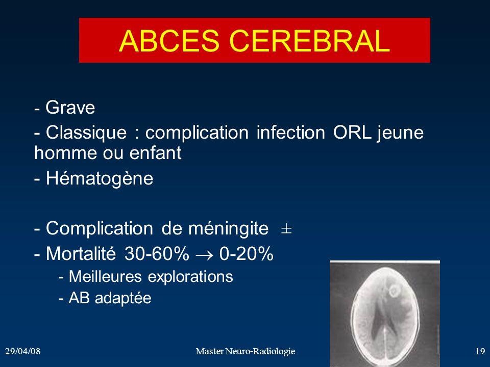 29/04/08Master Neuro-Radiologie19 ABCES CEREBRAL - Grave - Classique : complication infection ORL jeune homme ou enfant - Hématogène - Complication de