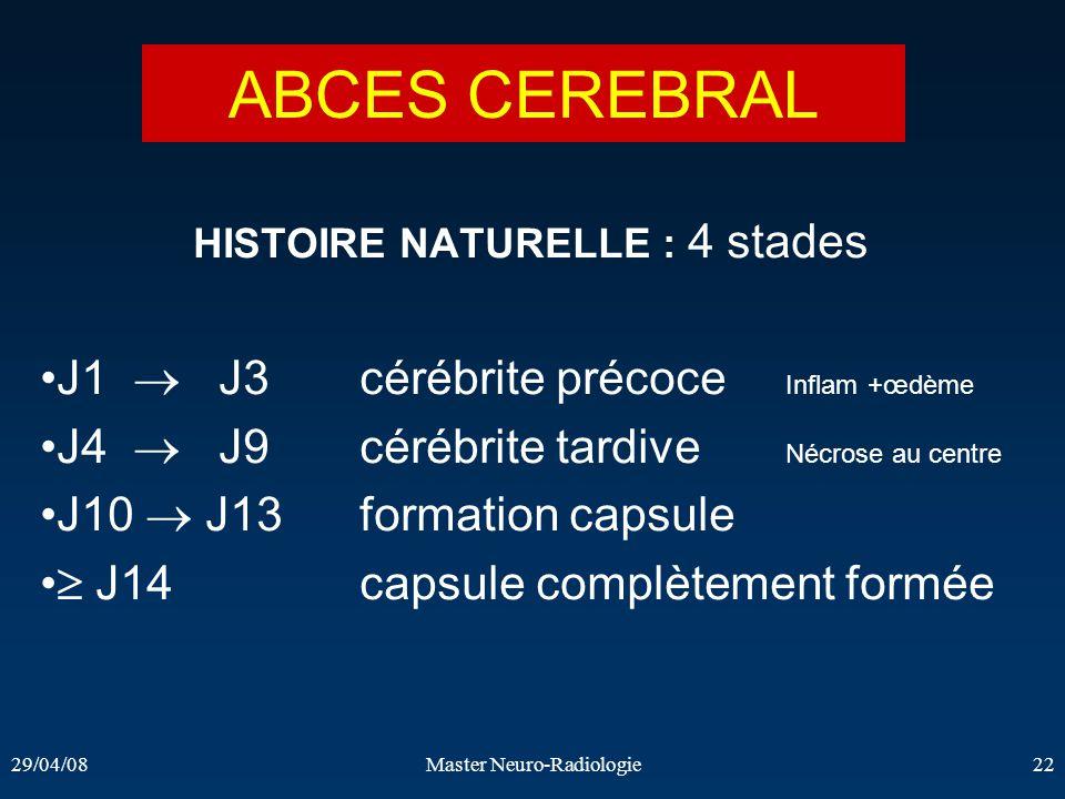 29/04/08Master Neuro-Radiologie22 HISTOIRE NATURELLE : 4 stades J1 J3cérébrite précoce Inflam +œdème J4 J9cérébrite tardive Nécrose au centre J10 J13f