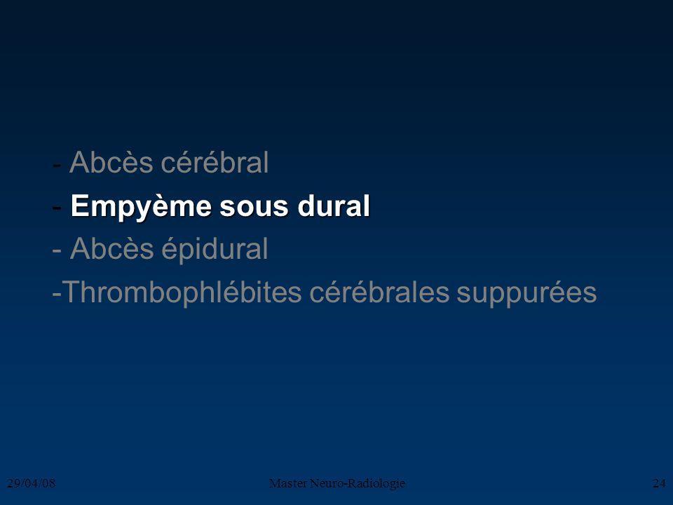 29/04/08Master Neuro-Radiologie24 - Abcès cérébral Empyème sous dural - Empyème sous dural - Abcès épidural -Thrombophlébites cérébrales suppurées