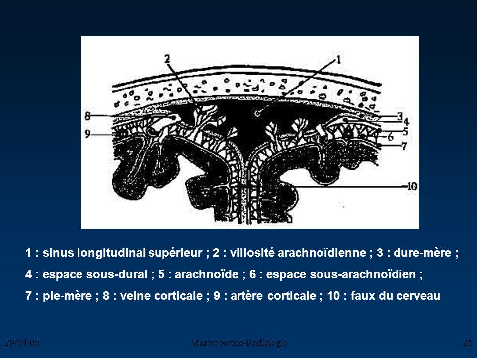 29/04/08Master Neuro-Radiologie25 1 : sinus longitudinal supérieur ; 2 : villosité arachnoïdienne ; 3 : dure-mère ; 4 : espace sous-dural ; 5 : arachn
