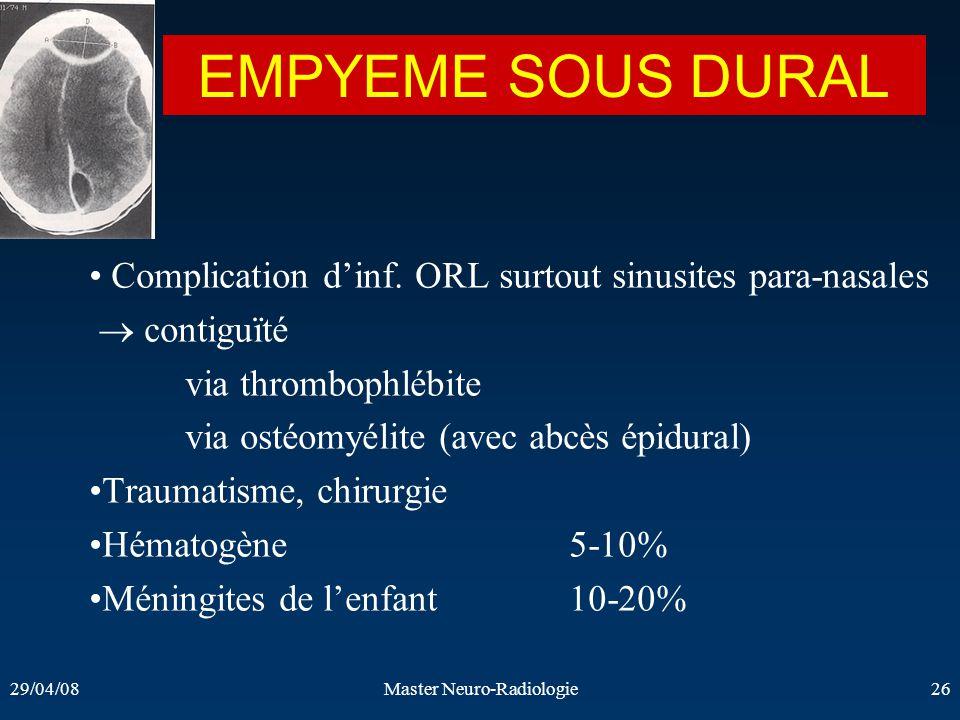 29/04/08Master Neuro-Radiologie26 EMPYEME SOUS DURAL Complication dinf. ORL surtout sinusites para-nasales contiguïté via thrombophlébite via ostéomyé