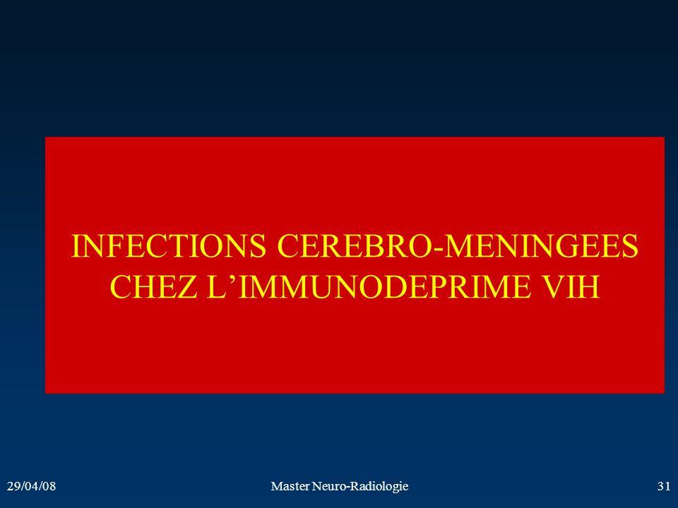 29/04/08Master Neuro-Radiologie31 INFECTIONS CEREBRO-MENINGEES CHEZ LIMMUNODEPRIME VIH