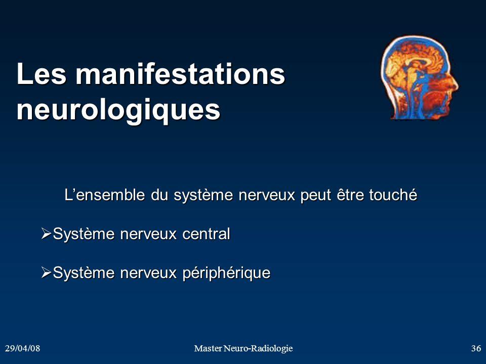 29/04/08Master Neuro-Radiologie36 Les manifestations neurologiques Lensemble du système nerveux peut être touché Système nerveux central Système nerve