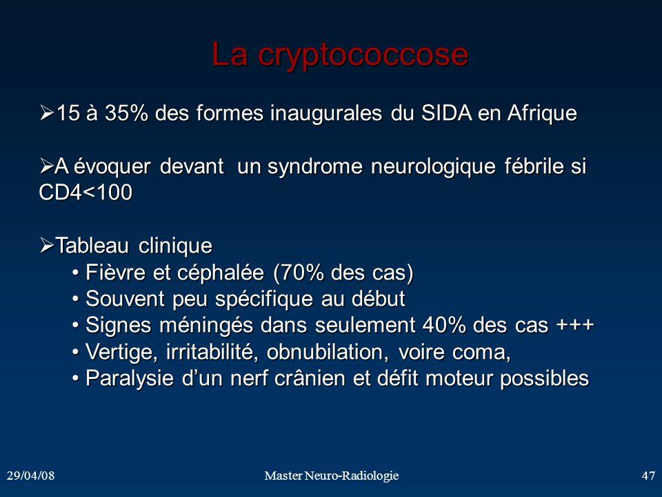 29/04/08Master Neuro-Radiologie47 La cryptococcose La cryptococcose 15 à 35% des formes inaugurales du SIDA en Afrique 15 à 35% des formes inaugurales