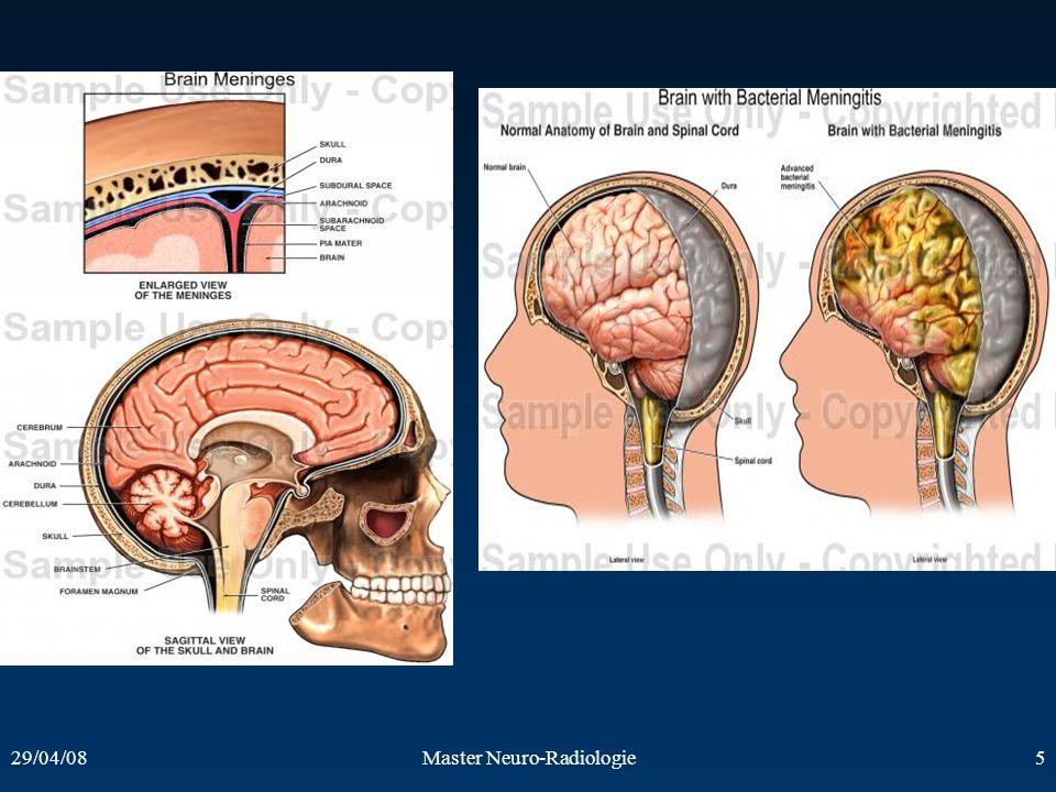 29/04/08Master Neuro-Radiologie5