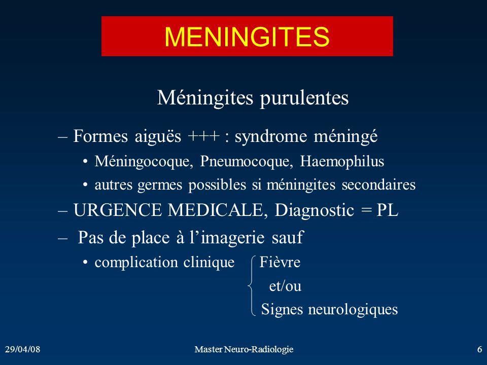 29/04/08Master Neuro-Radiologie6 MENINGITES Méningites purulentes –Formes aiguës +++ : syndrome méningé Méningocoque, Pneumocoque, Haemophilus autres