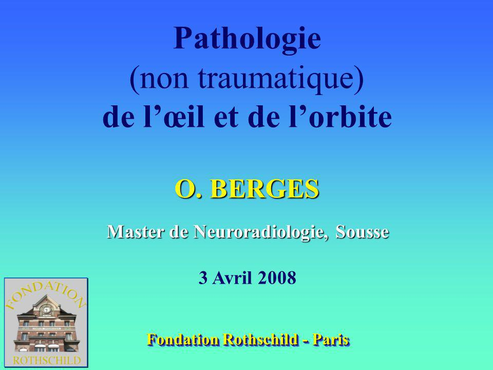 Pathologie (non traumatique) de lœil et de lorbite O.