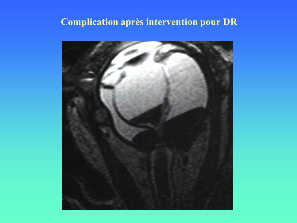 Complication après intervention pour DR
