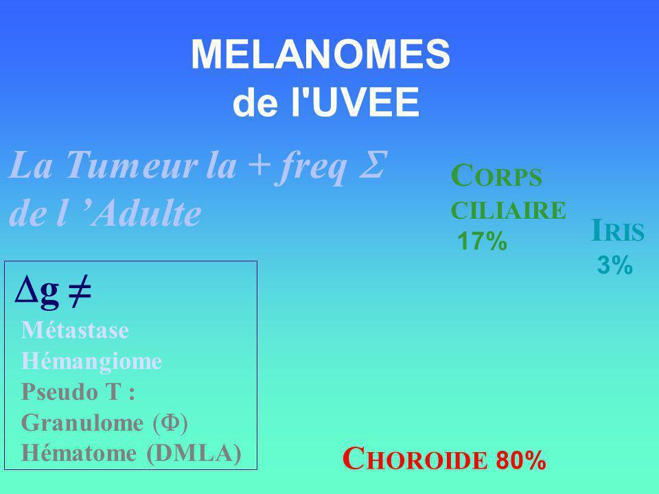 MELANOMES de l'UVEE C HOROIDE 80% C ORPS CILIAIRE 17% I RIS 3% La Tumeur la + freq de l Adulte g Métastase Hémangiome Pseudo T : Granulome ( ) Hématom