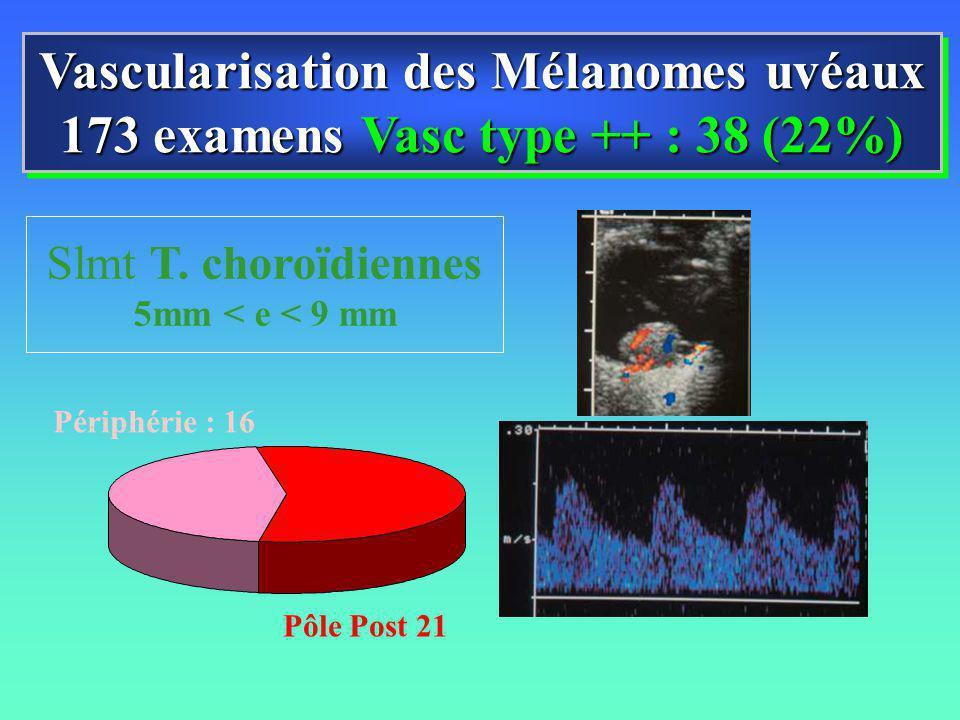 Vascularisation des Mélanomes uvéaux 173 examens Vasc type ++ : 38 (22%) Vascularisation des Mélanomes uvéaux 173 examens Vasc type ++ : 38 (22%) Pôle