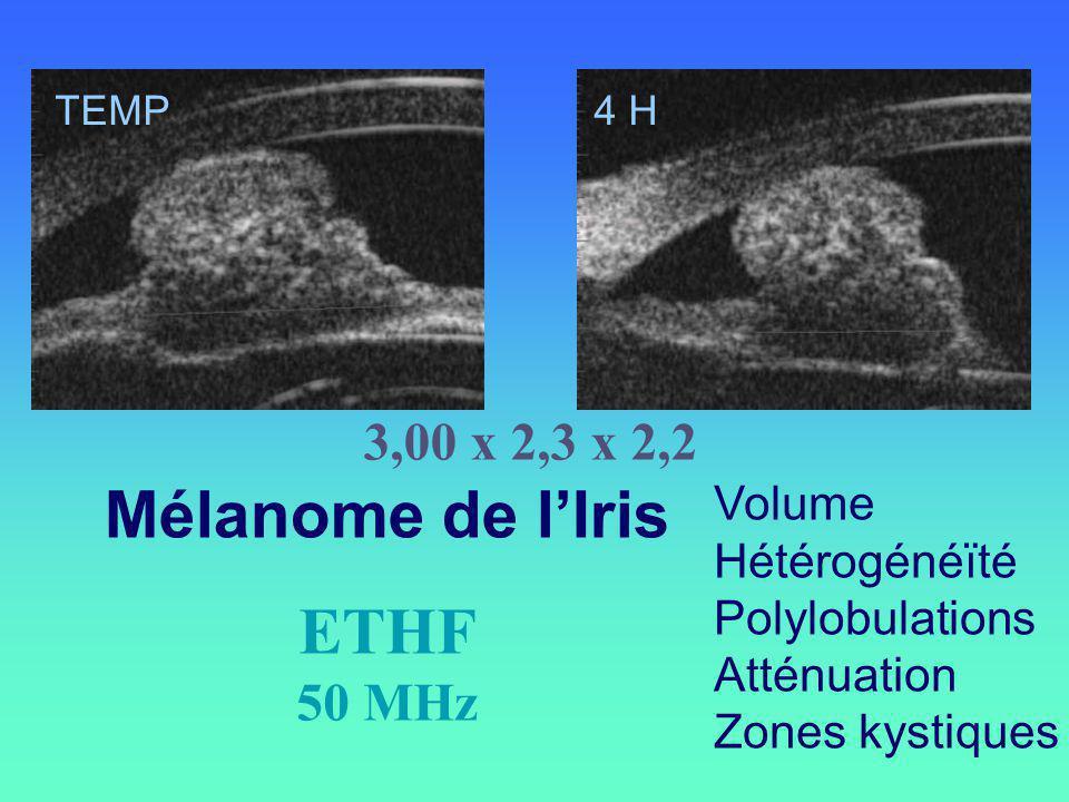 Mélanome de lIris Volume Hétérogénéïté Polylobulations Atténuation Zones kystiques TEMP4 H ETHF 50 MHz 3,00 x 2,3 x 2,2