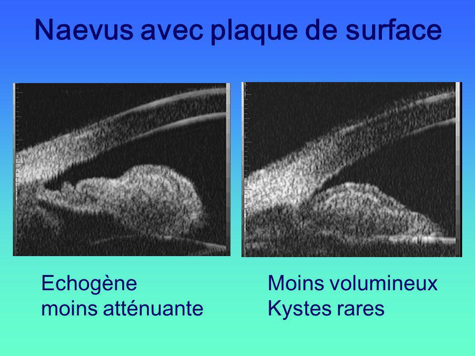 Naevus avec plaque de surface Echogène moins atténuante Moins volumineux Kystes rares