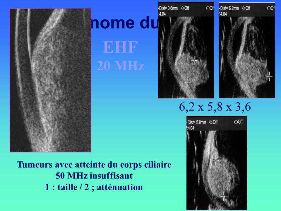 Tumeurs avec atteinte du corps ciliaire 50 MHz insuffisant 1 : taille / 2 ; atténuation 6,2 x 5,8 x 3,6 Mélanome du CC EHF 20 MHz