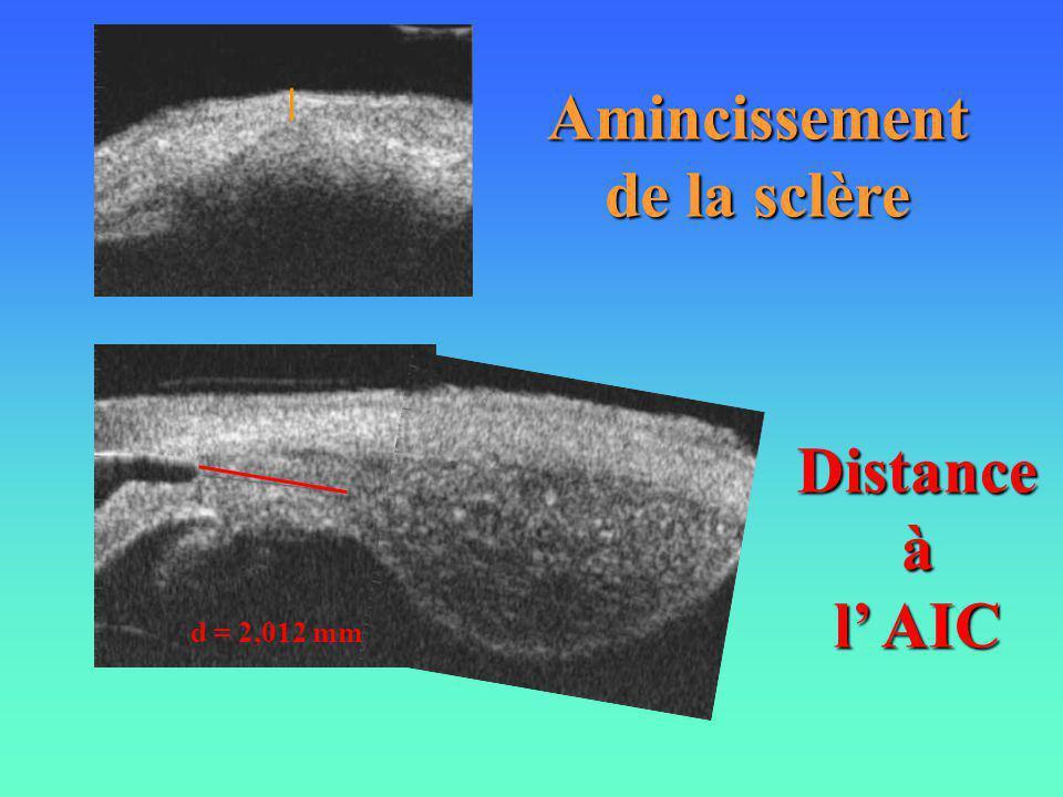 Amincissement de la sclère d = 2,012 mm Distanceà l AIC