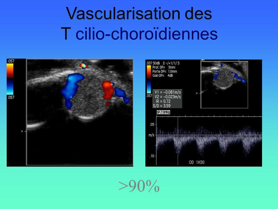 Vascularisation des T cilio-choroïdiennes >90%