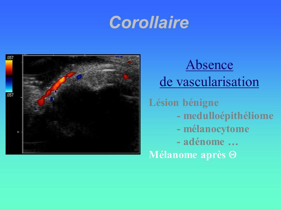 Corollaire Lésion bénigne - medulloépithéliome - mélanocytome - adénome … Mélanome après Absence de vascularisation