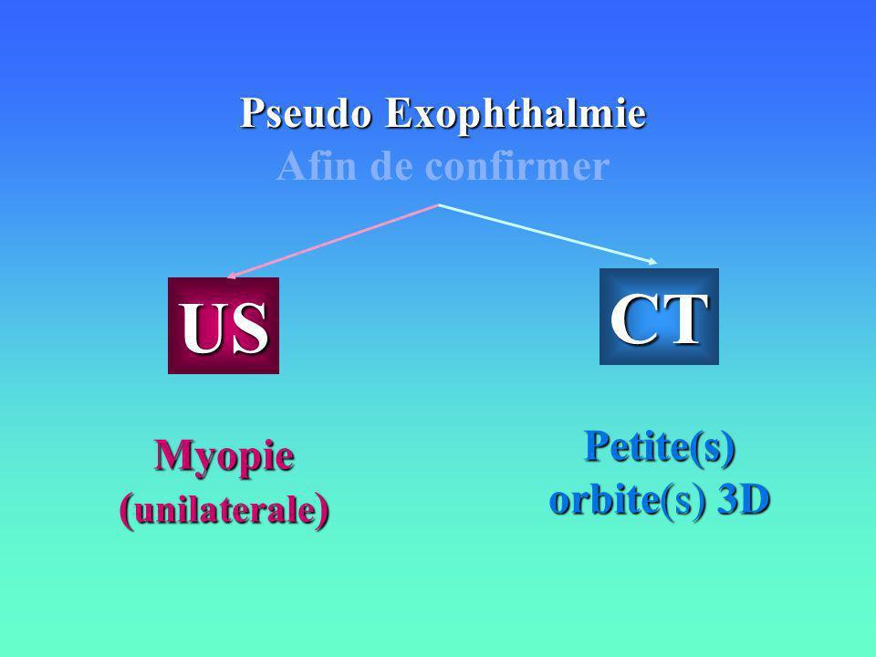 Pseudo Exophthalmie Afin de confirmer US Myopie ( unilaterale ) CT Petite(s) orbite(s) 3D