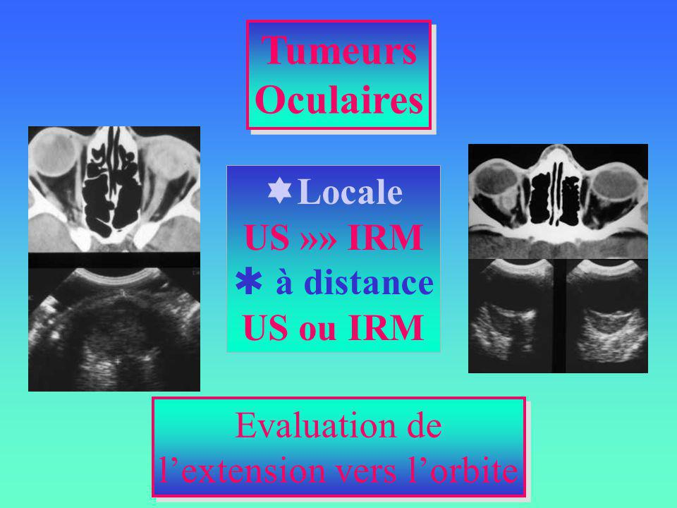 Evaluation de lextension vers lorbite Evaluation de lextension vers lorbite Locale US »» IRM à distance US ou IRM Tumeurs Oculaires Tumeurs Oculaires