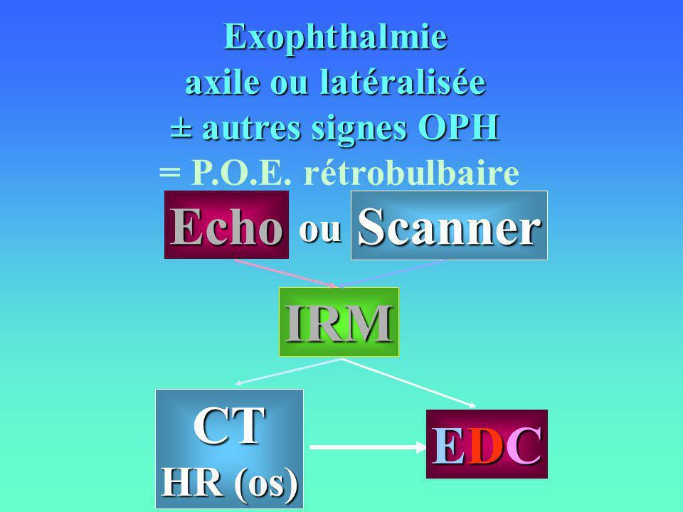 Exophthalmie axile ou latéralisée ± autres signes OPH = P.O.E. rétrobulbaire CT HR (os) IRM Echo Scanner EDCEDCEDCEDC ou