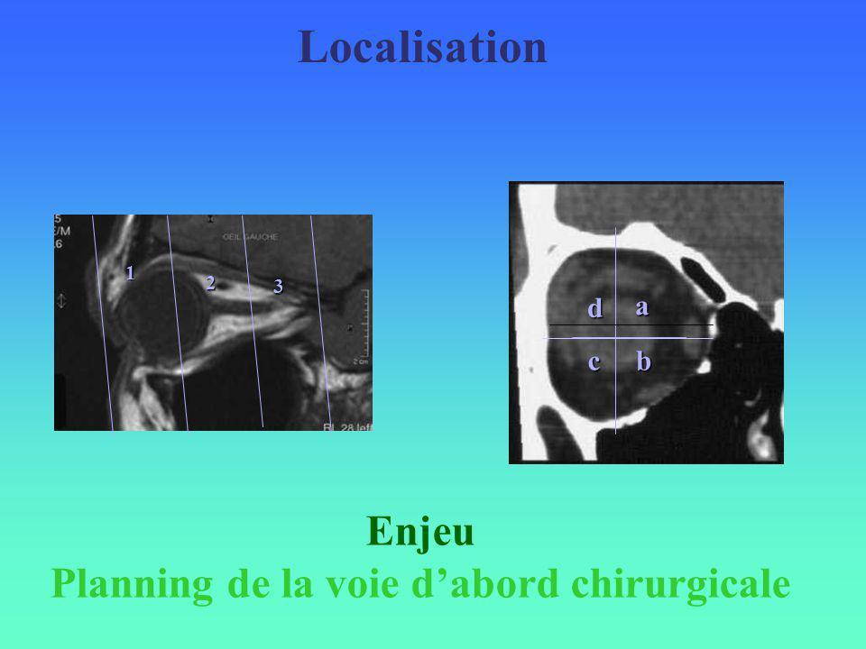Localisation a bc d 1 2 3 Enjeu Planning de la voie dabord chirurgicale