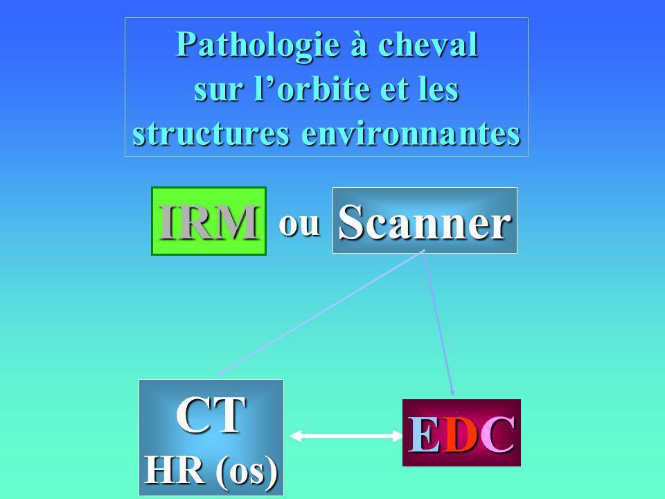 Pathologie à cheval sur lorbite et les structures environnantes CT HR (os) IRM Scanner EDCEDCEDCEDC ou