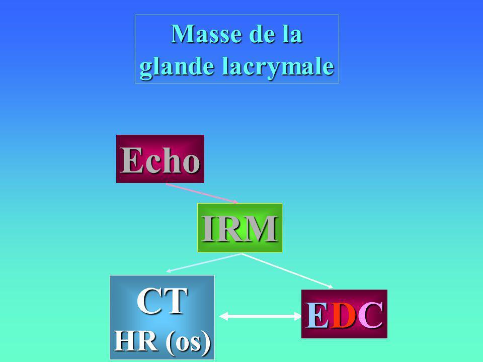 Masse de la glande lacrymale CT HR (os) IRM Echo EDCEDCEDCEDC