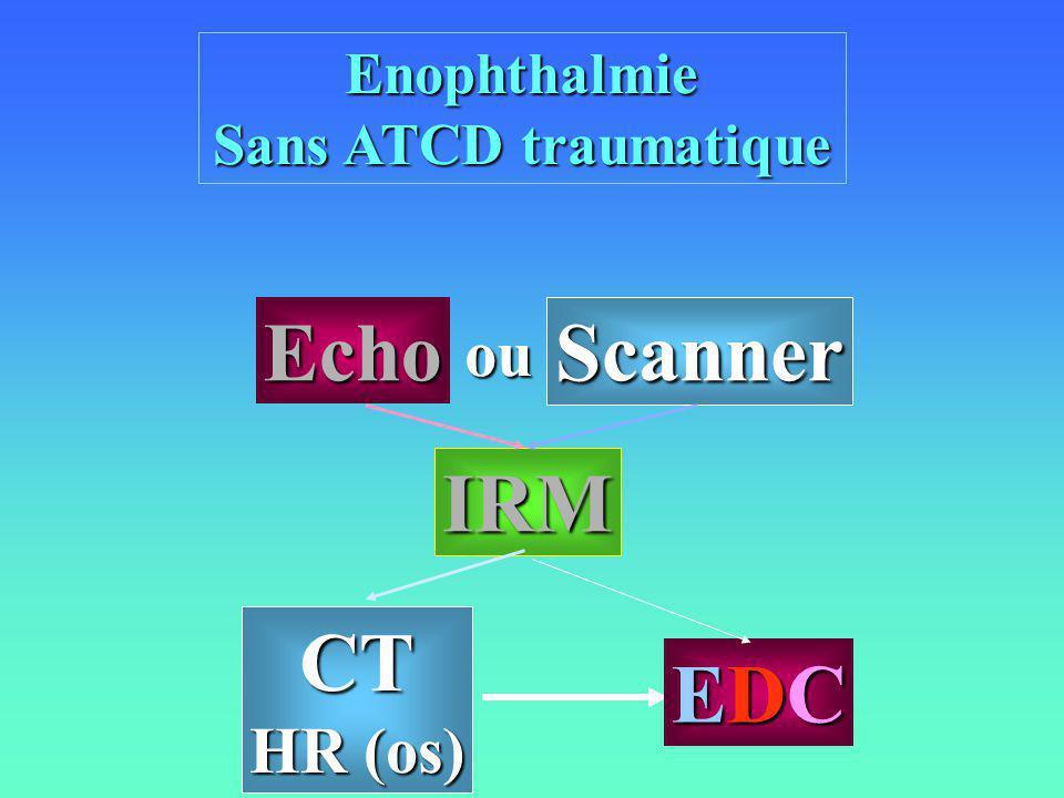 Enophthalmie Sans ATCD traumatique CT HR (os) IRM Echo Scanner EDCEDCEDCEDC ou